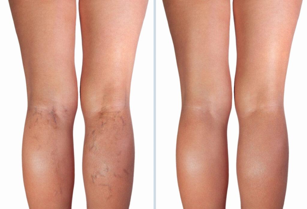 porównanie nóg kobiety przed i po leczeniu żylaków