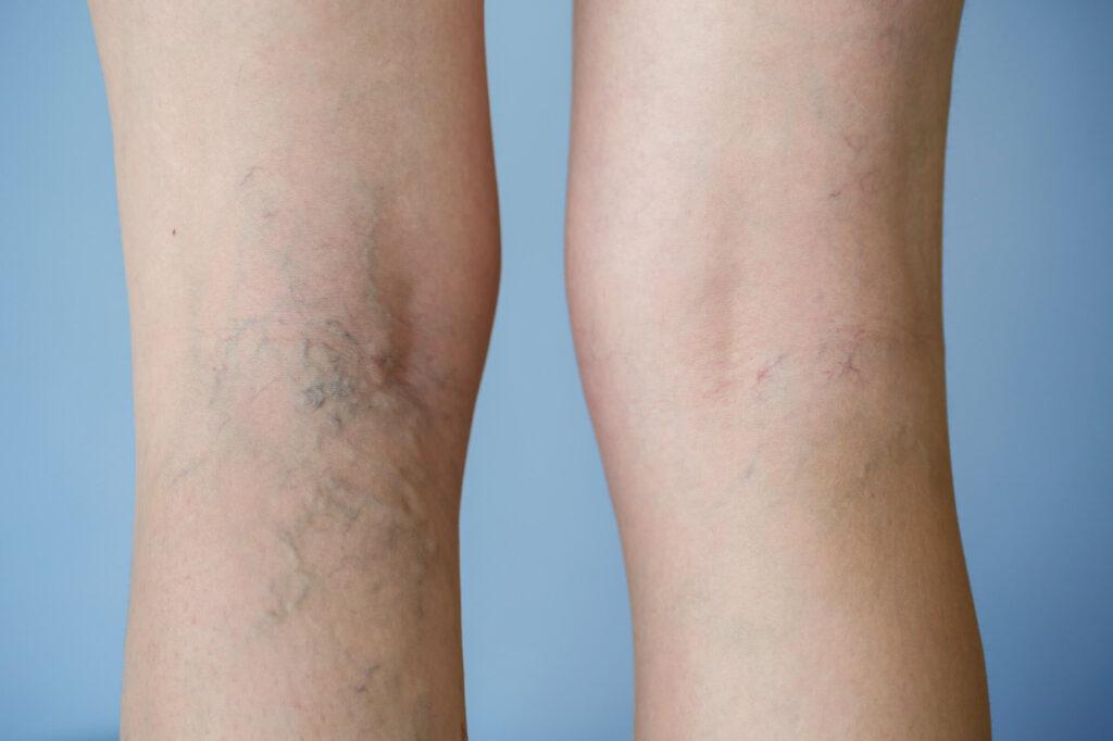 nogi kobiety w trakcie leczenia żylaków