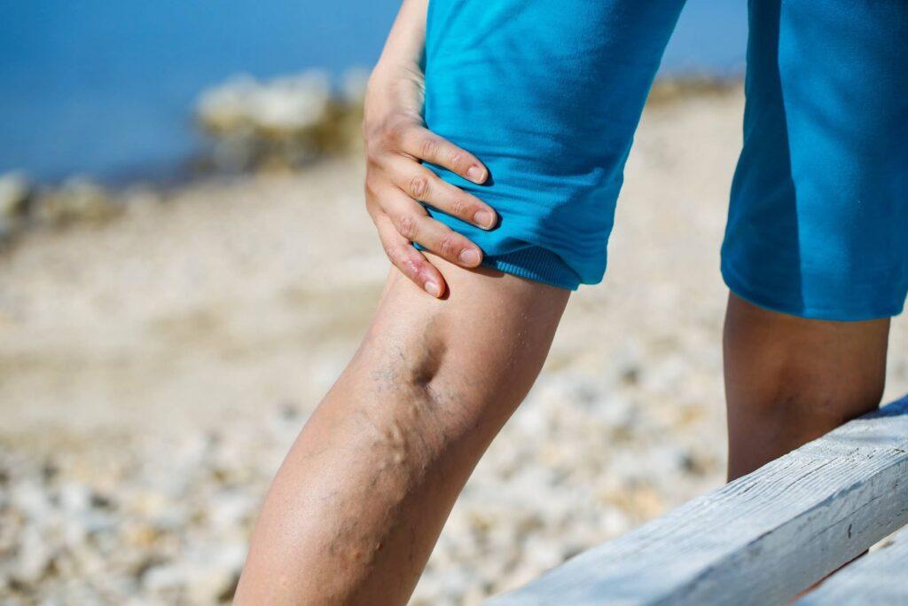 żylaki nóg u mężczyzny