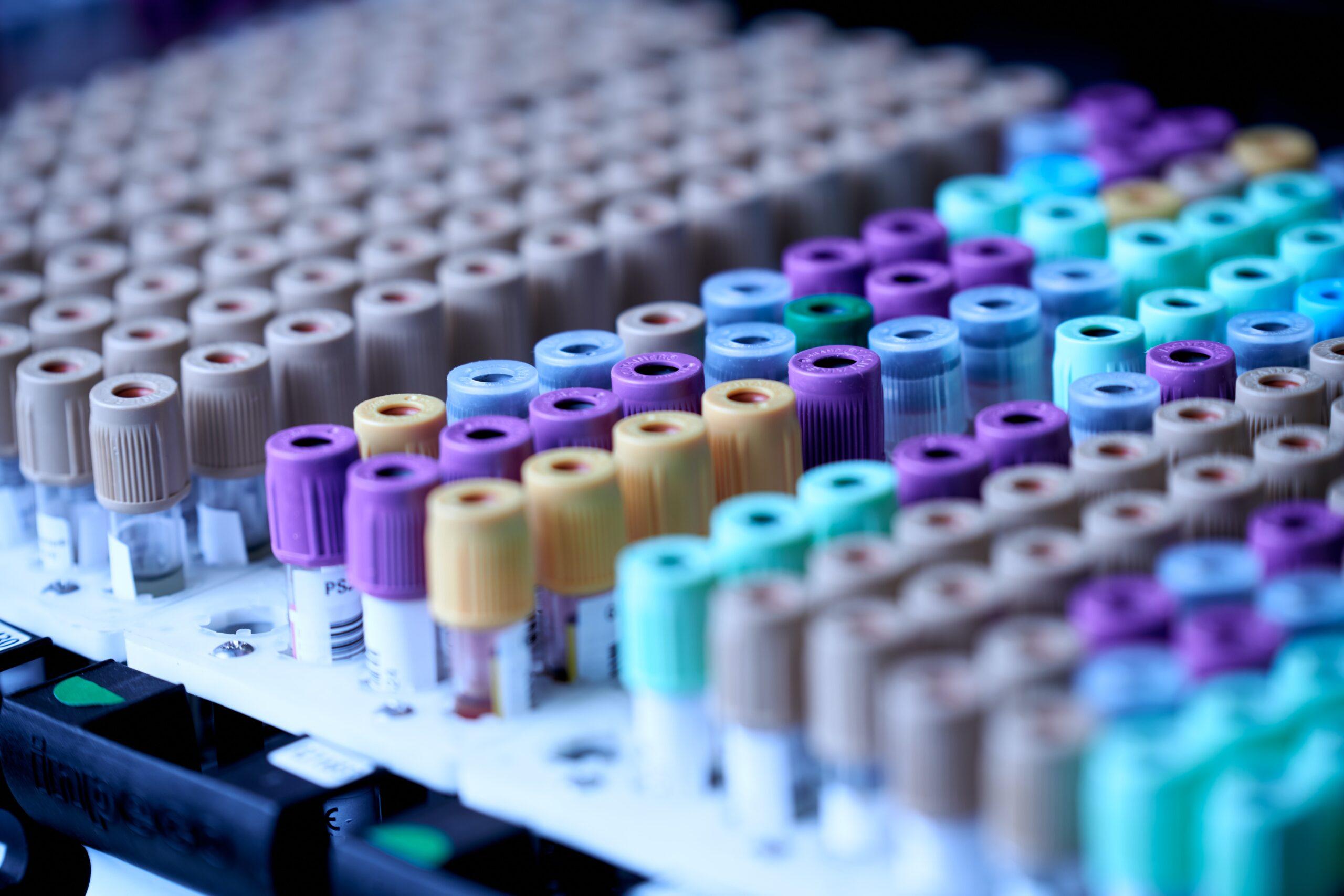 wiele kolorowych próbek znajdujących się w punkcie pobrań