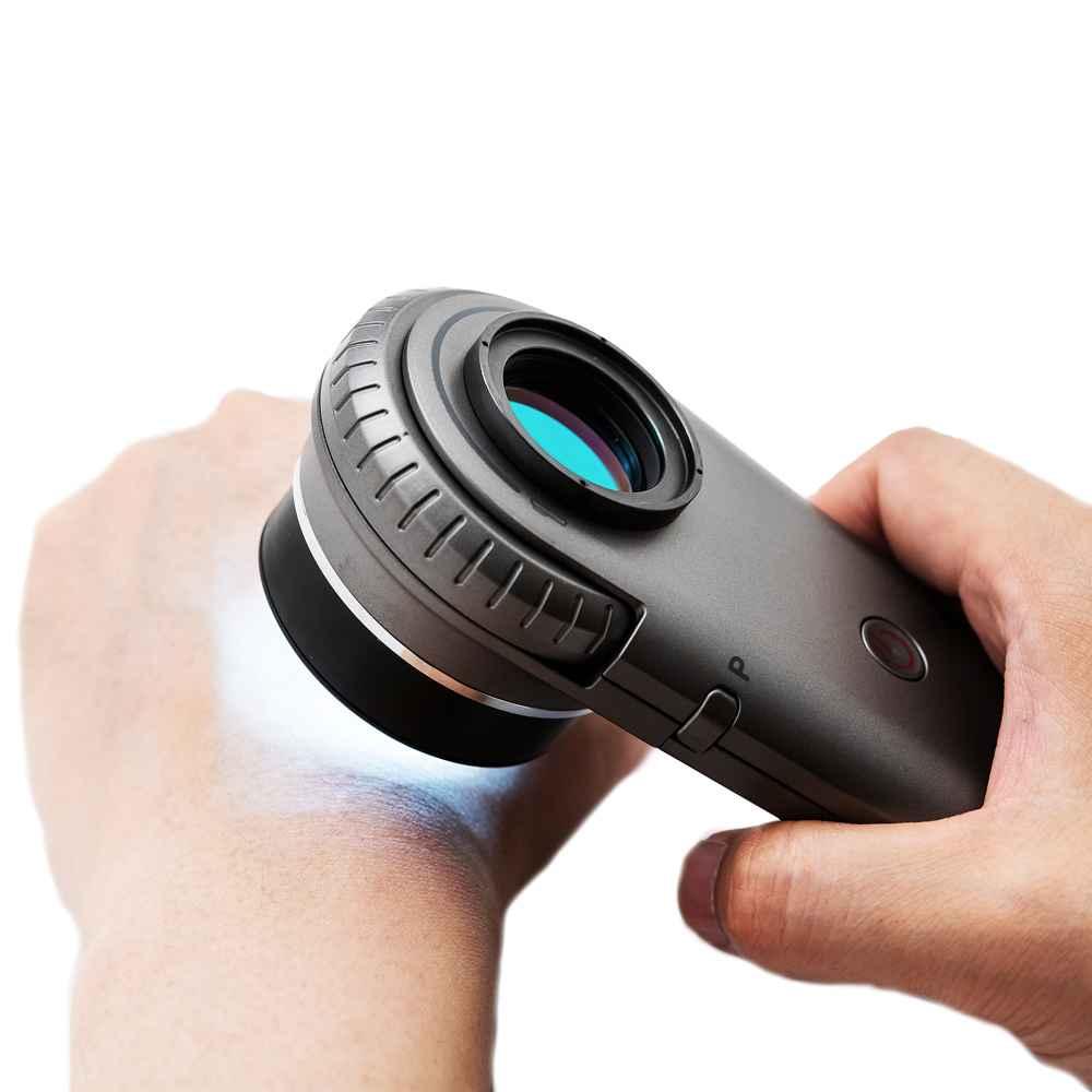 urządzenie do badania znamion na skórze