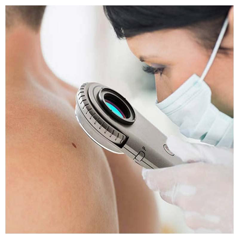 dermatolog bada pieprzyk na plecach pacjenta